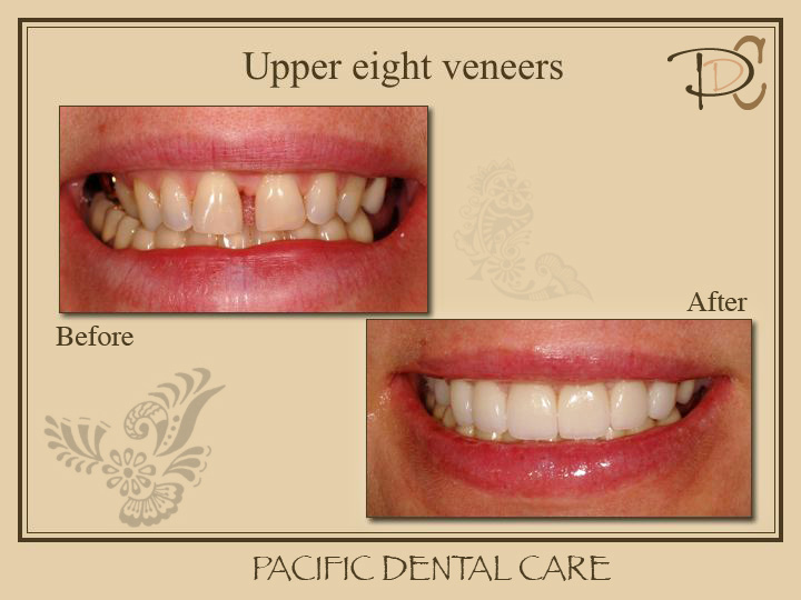 Smile Gallery Veneers